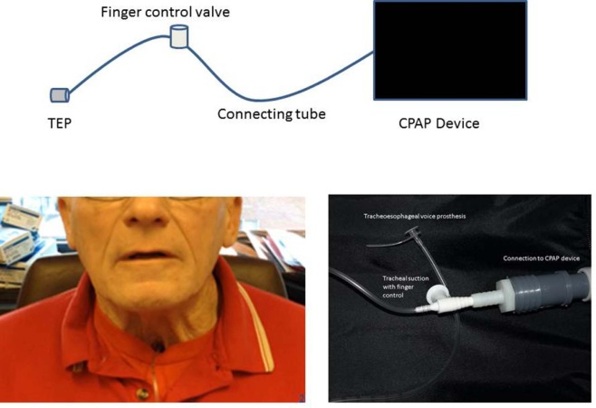 Proof Of Concept Of A Tracheoesophageal Voice Prosthesis Insufflator For Speech Production After